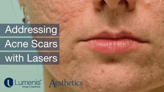 Addressing Acne Scars with Lasers